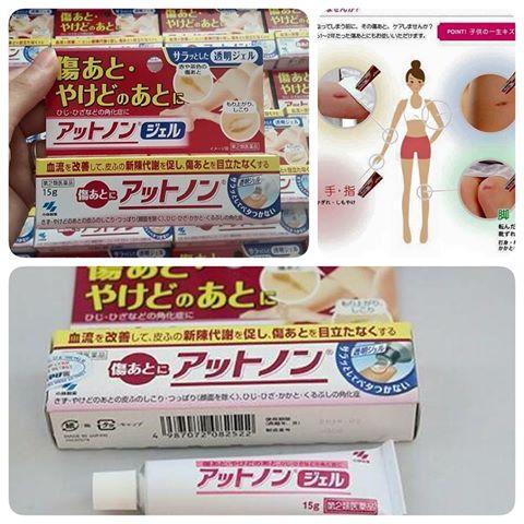 Công dụng của kem trị sẹo Kobayashi Attonon Nhật Bản 15g - đánh bay sẹo hiệu quả